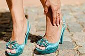 High Heels and Bunions